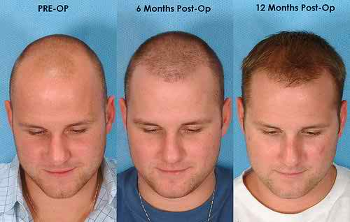 how to do business plan for hair restoration
