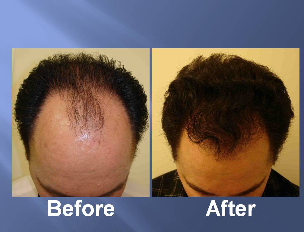 Hair transplant results reddit